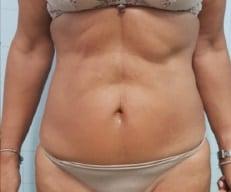 Huidverslapping behandeling voor na Onda