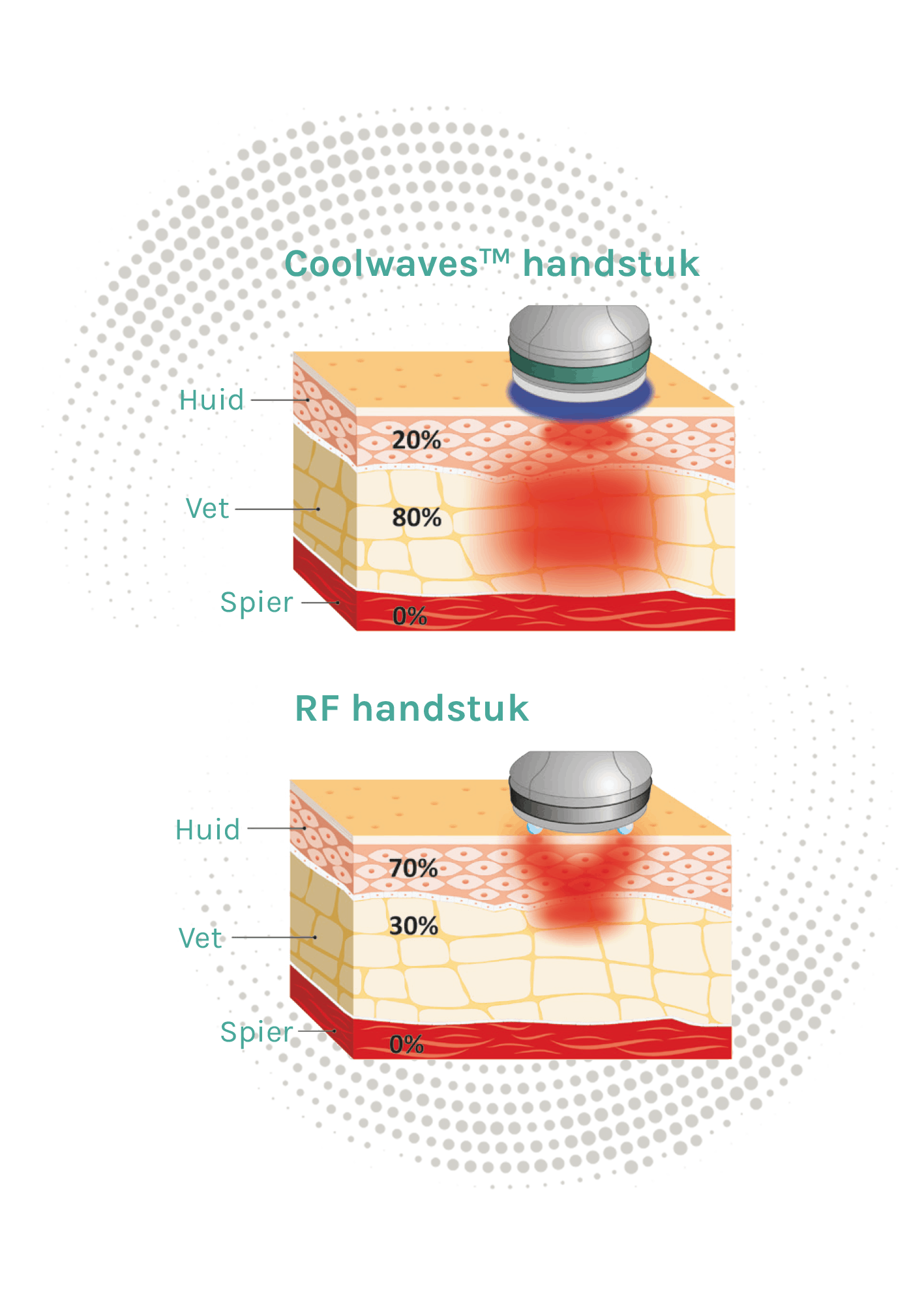 Onda Coolwaves bodyshaping